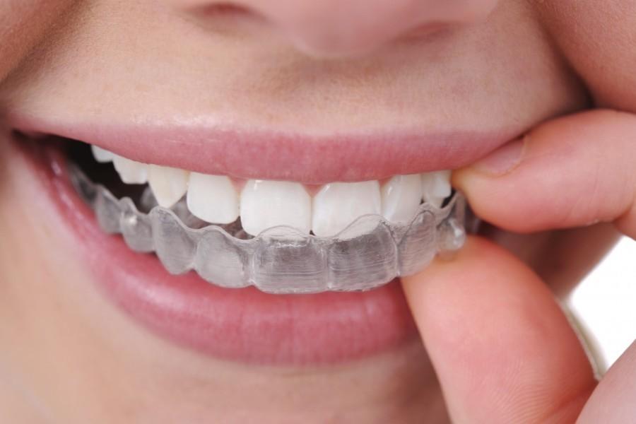 Sve o Invisalign zubnom aparatiću