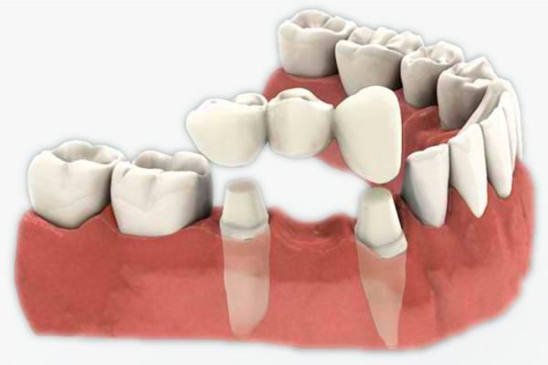 Sve što trebate znati o zubnim krunicama i mostovima